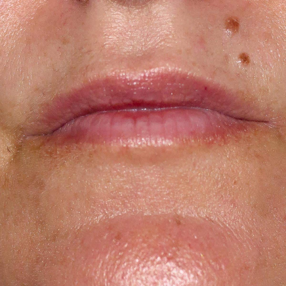 close up of lips after using an at-home lip filler