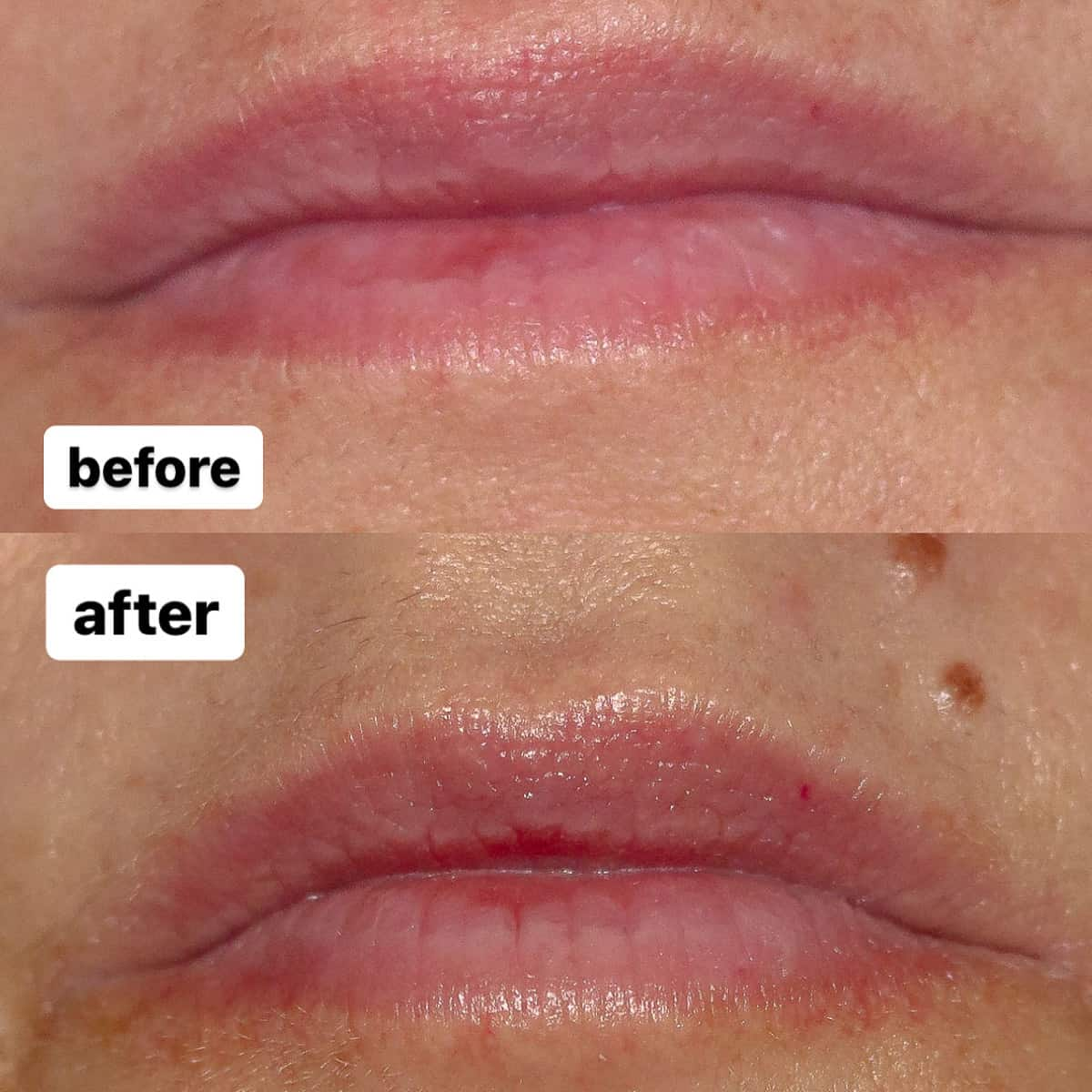 Before and after of my lips after using Neostrata Targeted Lip Filler for 1 week